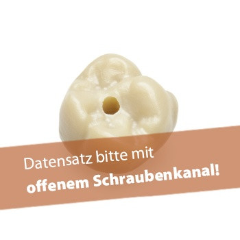 Abutmentkrone zweiteilig (vollanatomisch),extra translucent, priti®multicolor