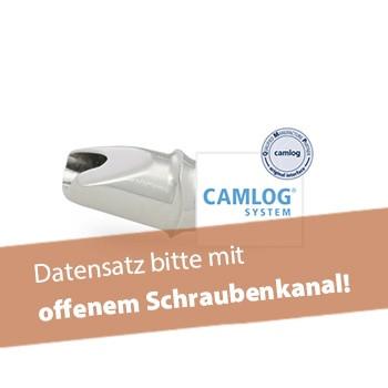 Abutment, CAMLOG® (inkl. Abutmentschraube)