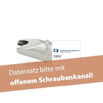 Abutment, Dentaurum, tiologic® (inkl. Abutmentschraube)