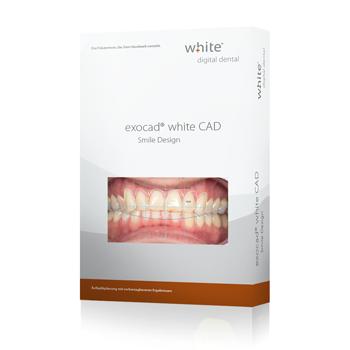 exocad®, white Smile Design Add-on Modul